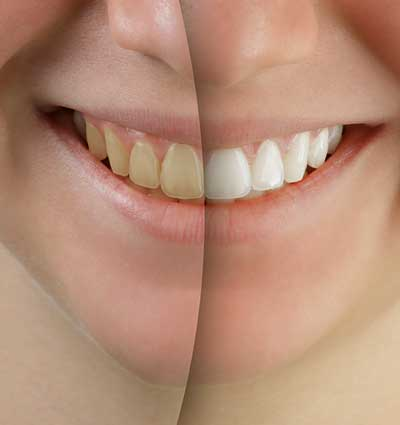 Dental Services - Cosmetic Dentistry