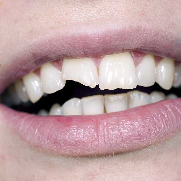 Broken Tooth - What Your Dentist Will Do