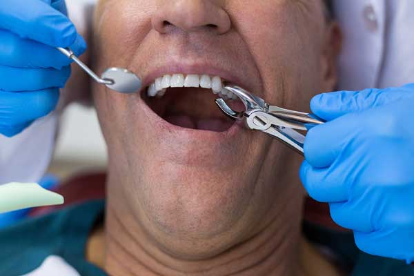 Tooth extraction - Dental Infection