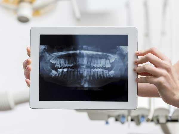 Diagnosing a Toothache